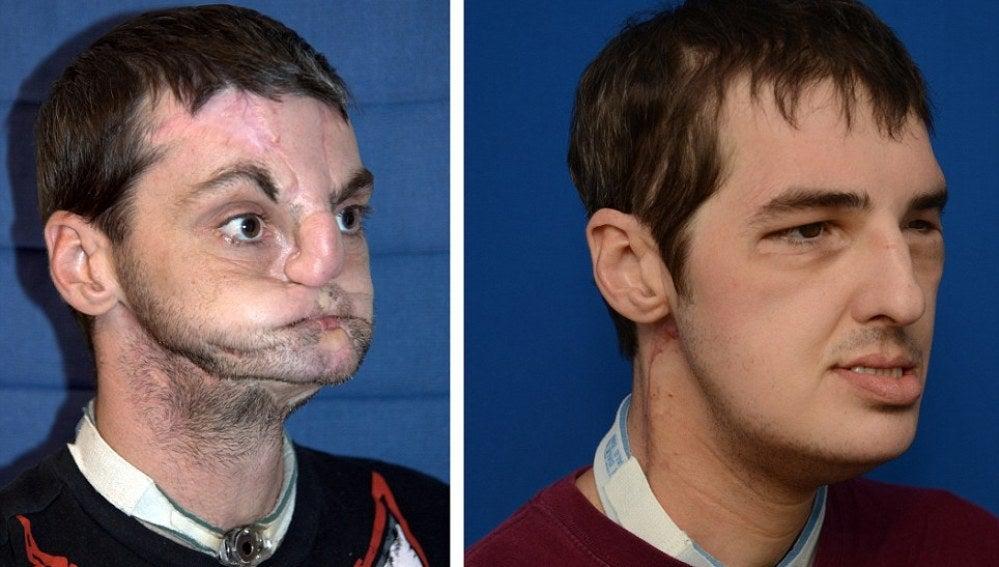 Norris, antes y después del transplamte de cara