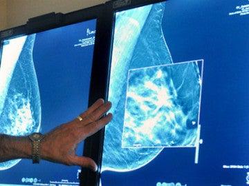Un test al diagnosticar el cáncer de mama predice cómo irá el tratamiento