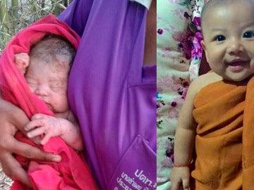 El antes y el después del bebé enterrado vivo en Tailandia