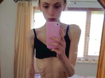La joven anoréxica