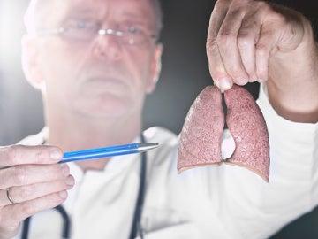 """Localizan un punto débil en la """"armadura"""" del cáncer de pulmón más agresivo"""