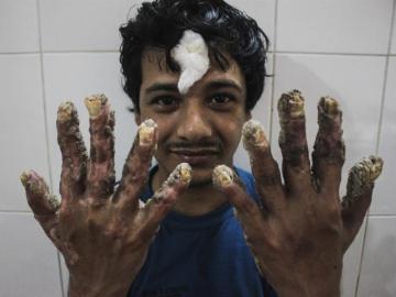 El 'hombre árbol' de Bangladesh posa con sus nuevas manos tras varias operaciones