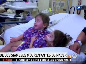 Eva y Erika, unas siamesas de 2 años, superan con éxito una cirugía para separarlas