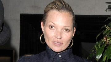 ¿Qué le pasa a Kate Moss en el ojo?