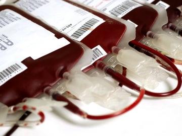 En la imagen varias unidades de sangre AB+