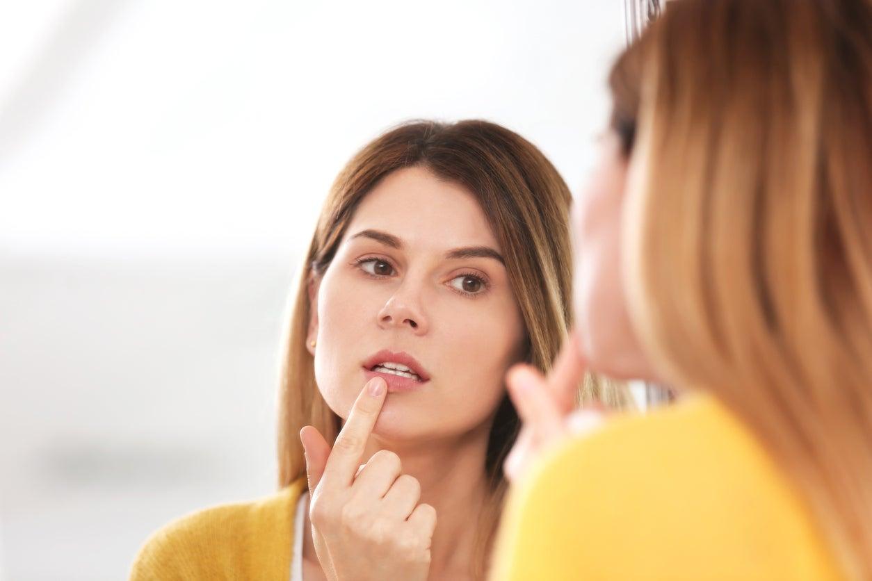 Como curar el herpes labial de forma natural