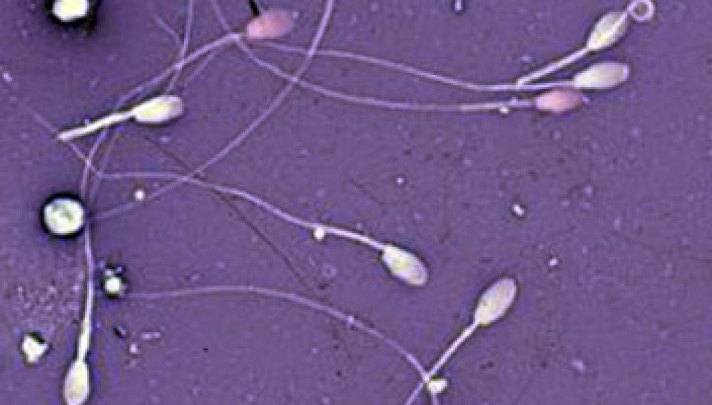 Crean un 'esperma de laboratorio'