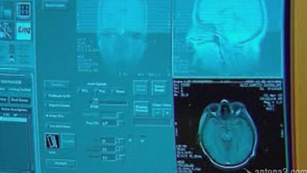 Un avance ciéntifico sobre el Alzheimer