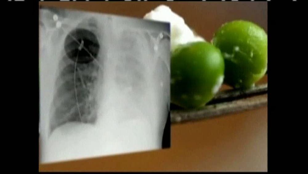 Extirpan un guisante de un pulmón