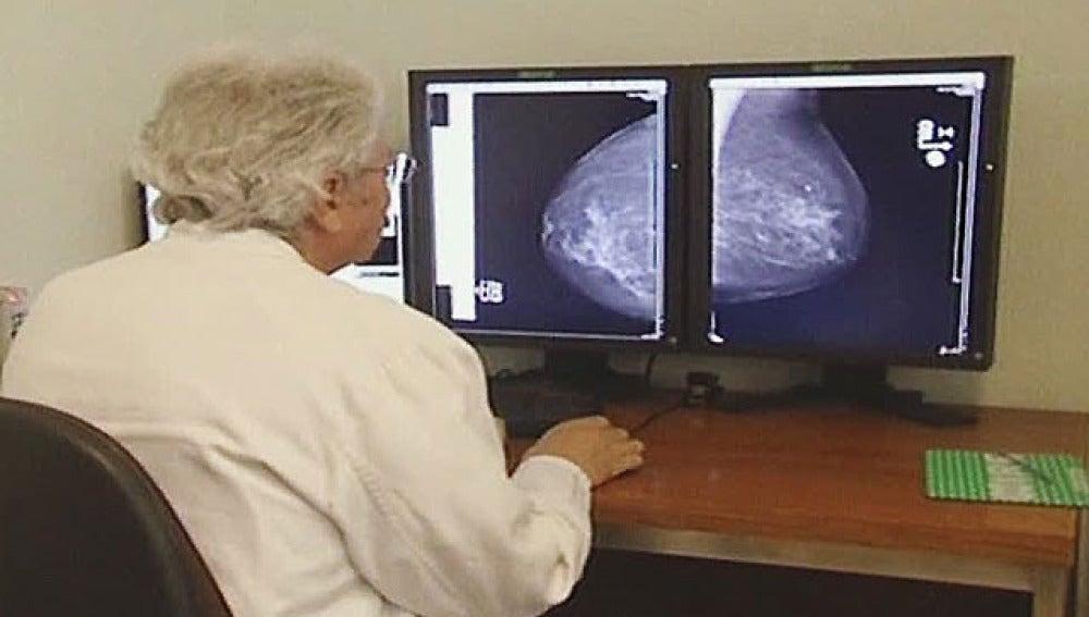 Esopecialista observando resultado de una mamografía