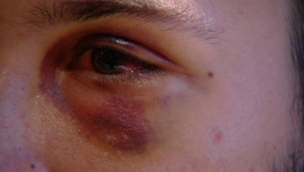 Brutal paliza a unos estudiantes en Las Palmas de Gran Canaria