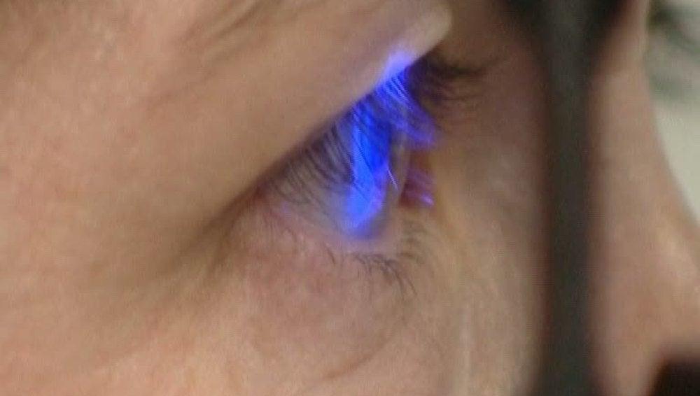 Estudio de la retina