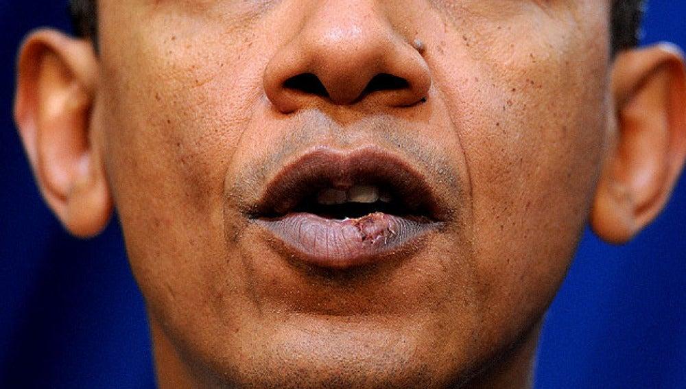 Labio de Obama herido cuando jugaba al baloncesto