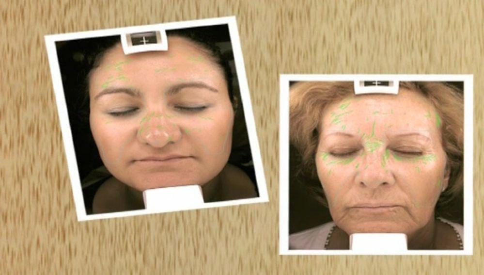 Buscan 200 mujeres para realizar un estudio sobre envejecimiento de la piel