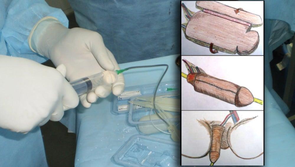 cirugía de implante de disfunción eréctil