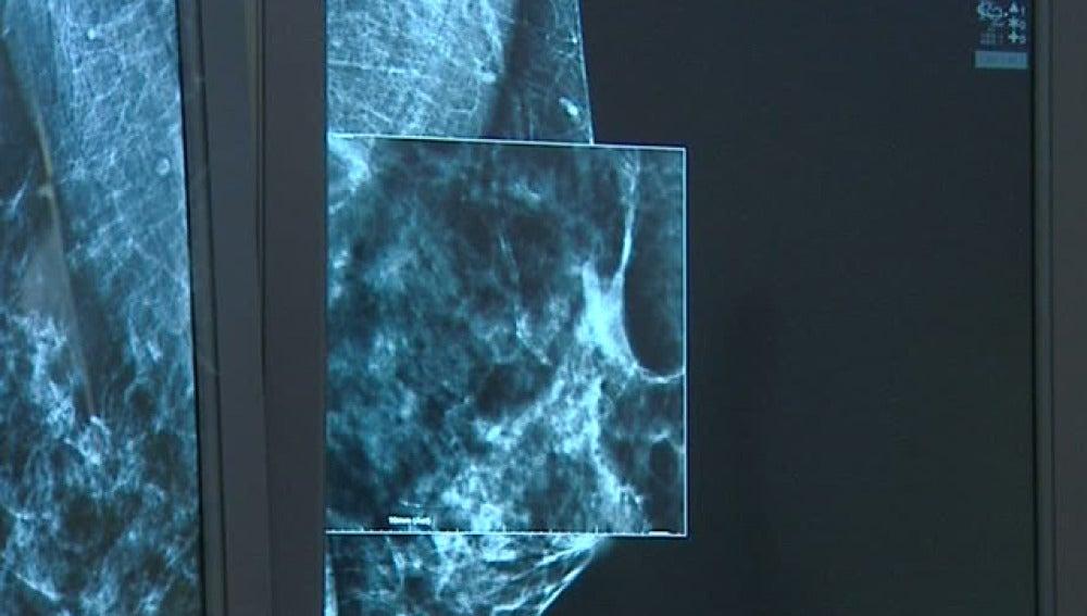 La mamografía en 3D llega a Zaragoza para avanzar en la detección del cáncer