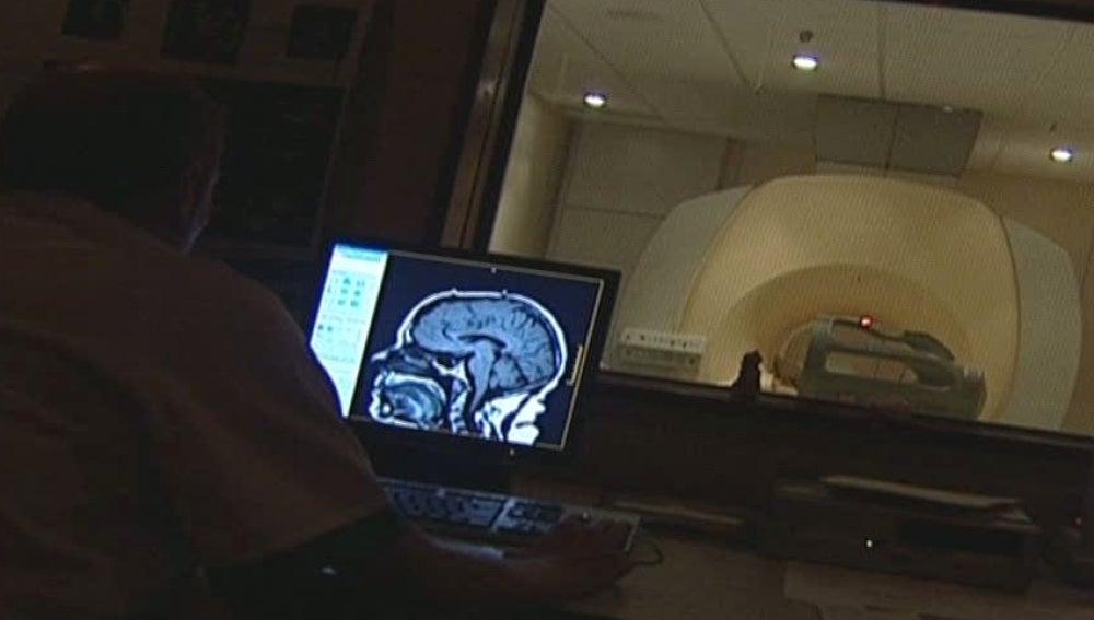 Los hombres tenemos el cerebro más pequeño