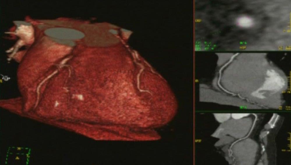 Crean un corazón con células madre