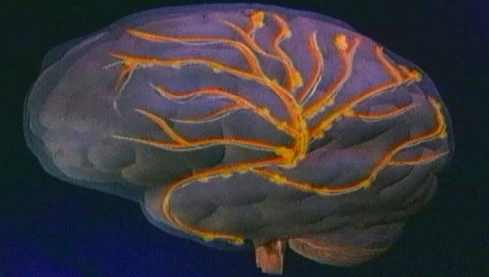 Los despistados tienen el cerebro más grande