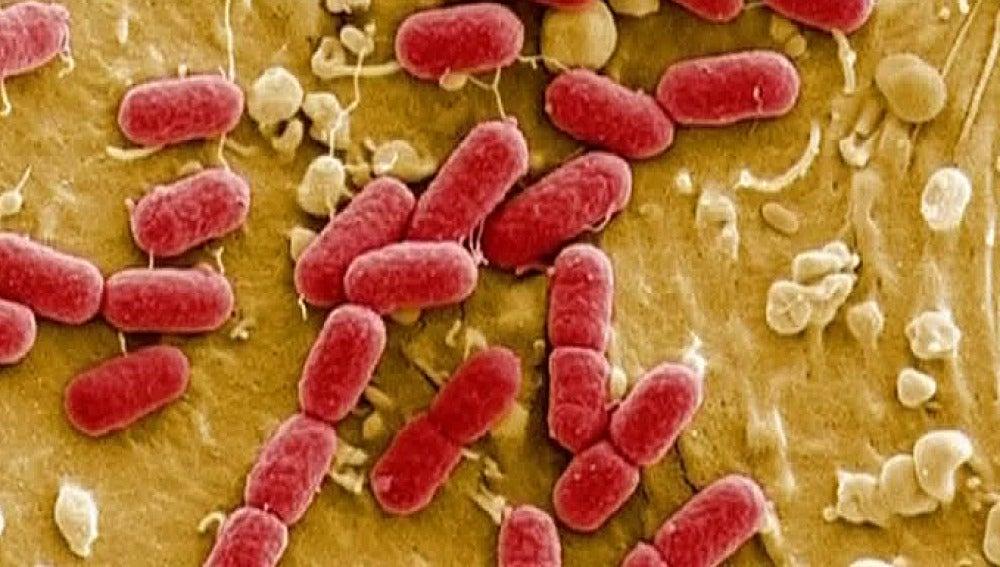 Imágenes de la bacteria 'E. Coli'