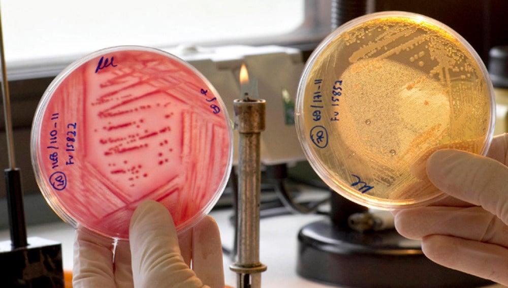 Francia desvincula la infección de E. Coli de Alemania