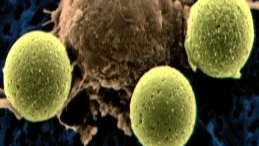 Primer éxito de un tratamiento experimental contra la leucemia