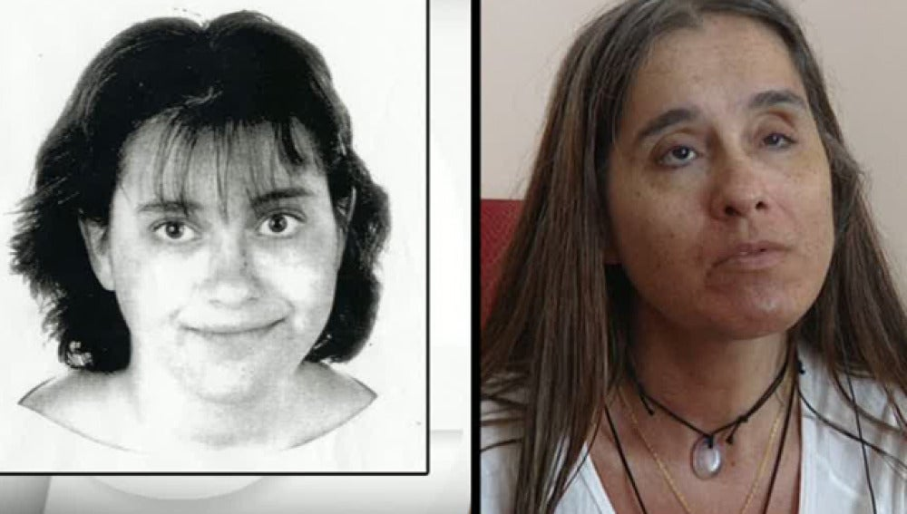Una joven se queda ciega al operarse de miopía