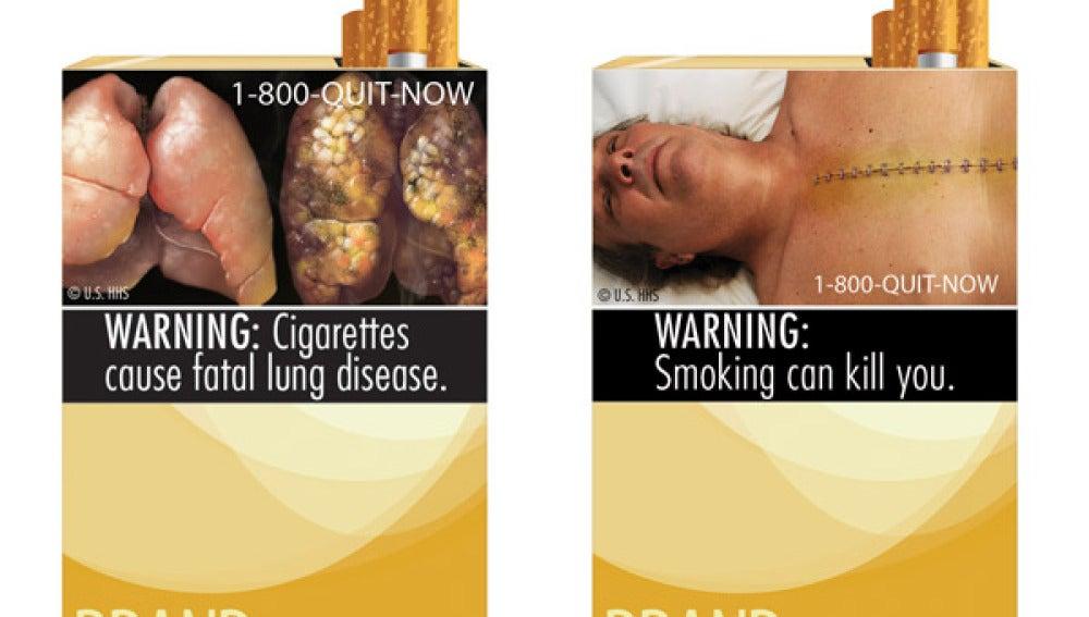 Imágenes duras en cajetillas de tabaco