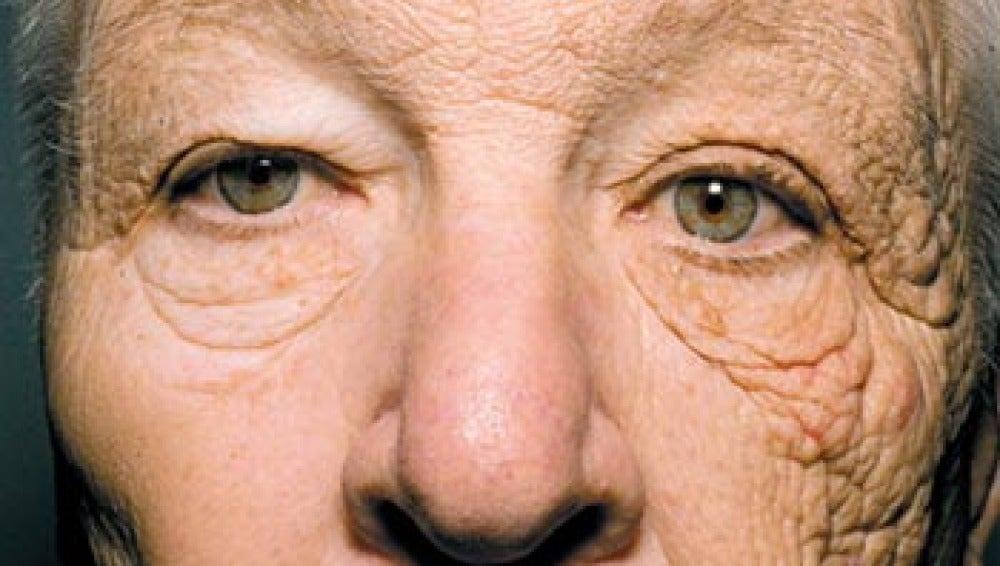 Los efectos del sol en tu rostro