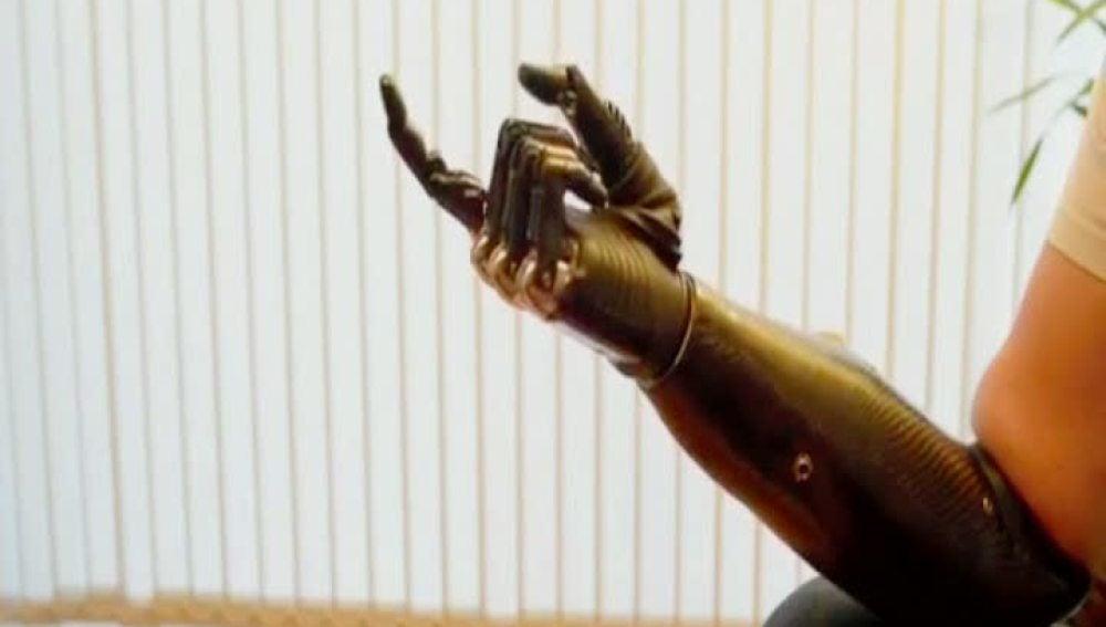 El brazo biónico ya es una realidad