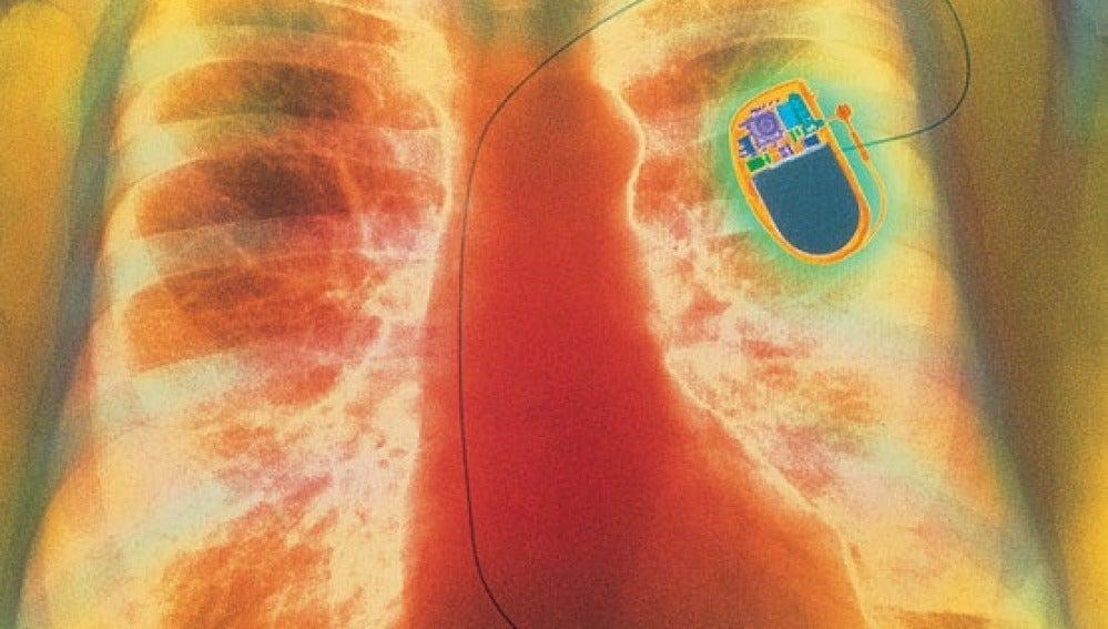 Convierten células ordinarias del corazón en marcapasos biológicos