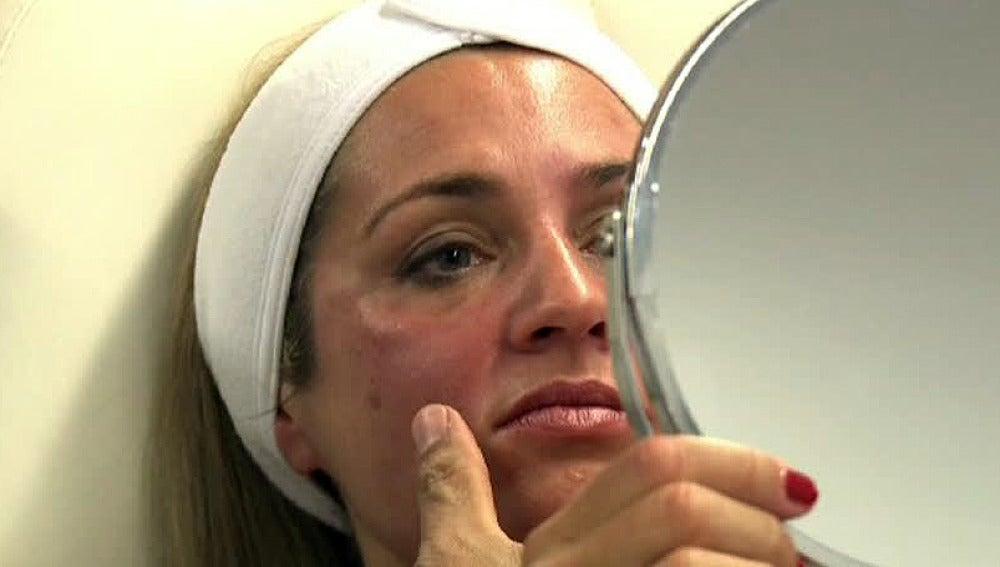 Una buena piel, reflejo de nuestra salud