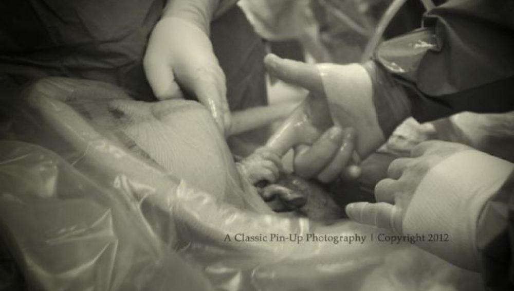 Momento en que la pequeña se coge del dedo del doctor