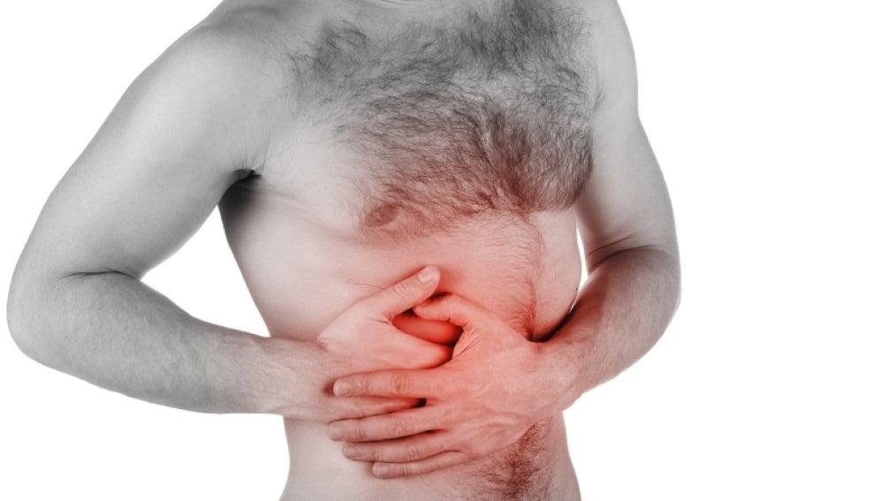 El 20% de los casos de colon son de naturaleza genética.