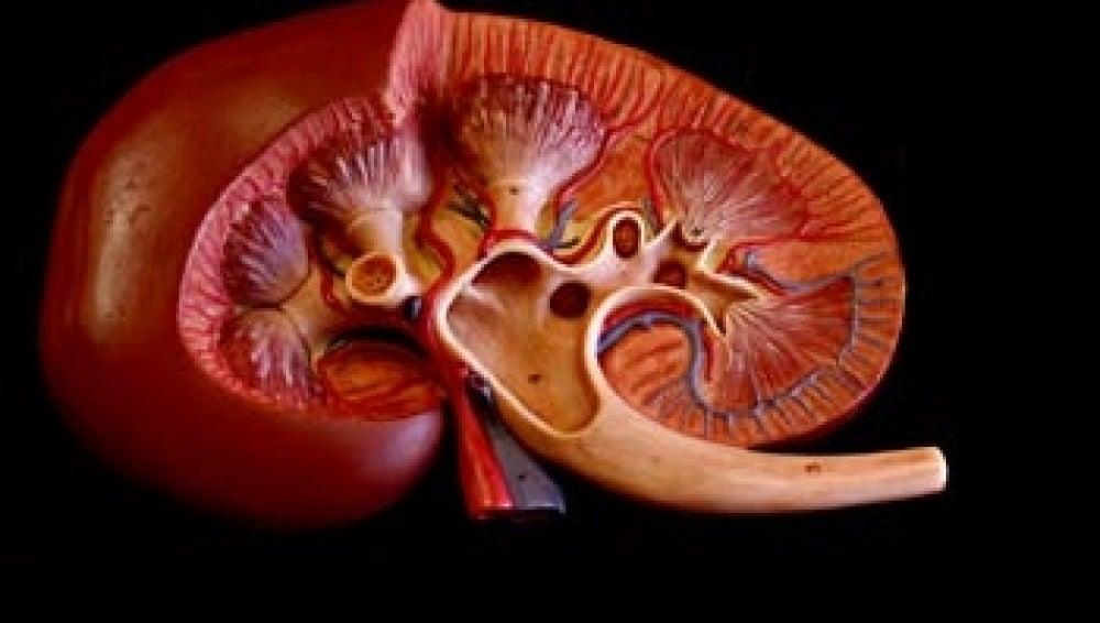 Imagen de un riñón