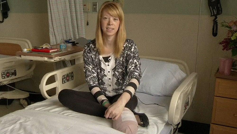 Una bailarina que perdió un pie en el atentado de Boston