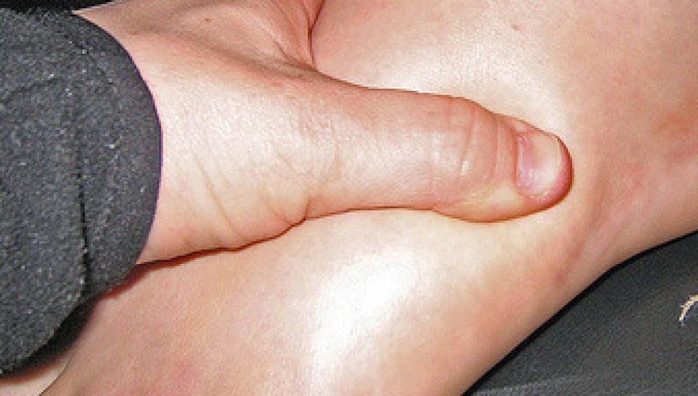 Uno de los síntomas de la gota es el pie hinchado