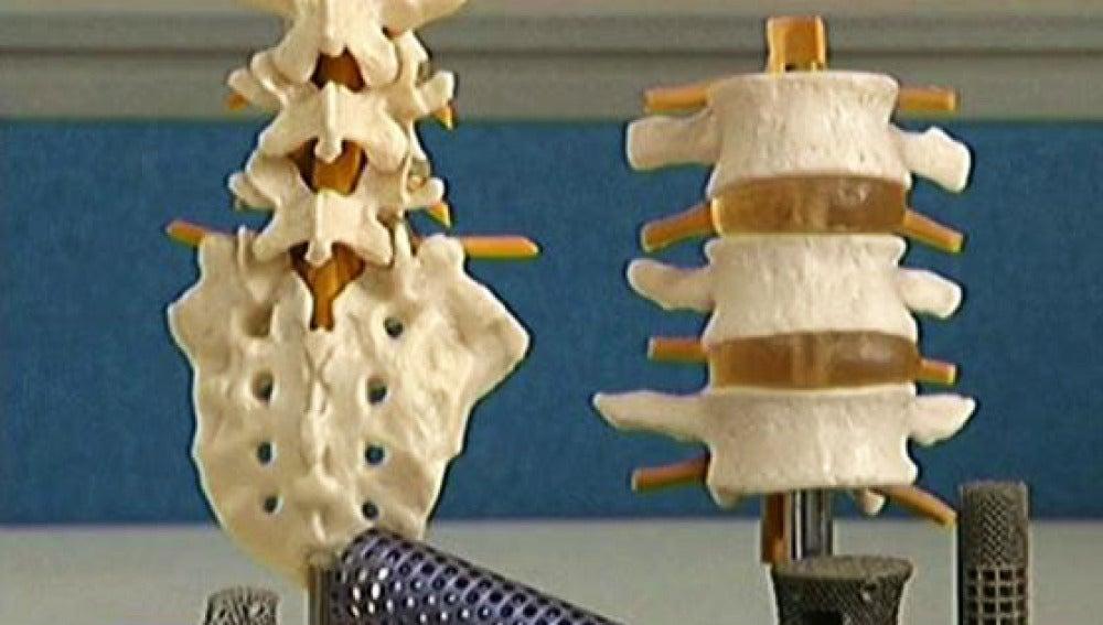Huesos impresos en 3D
