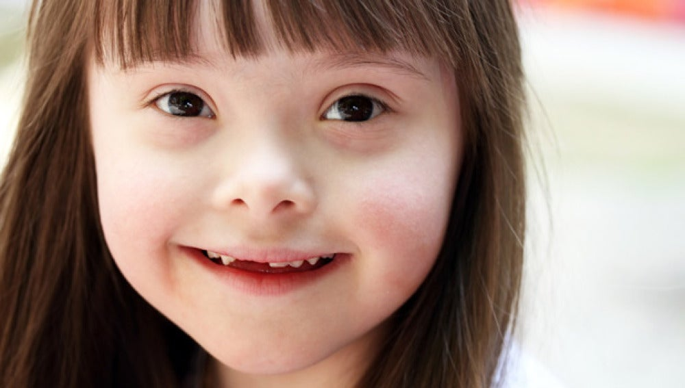 Niña con Síndrome de Down