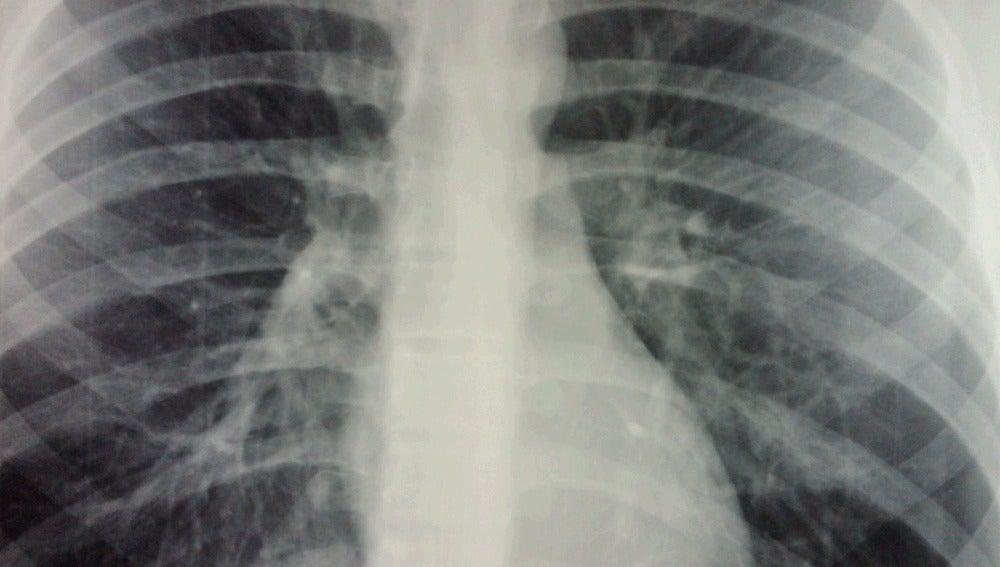 Radiografía Bronquiolitis