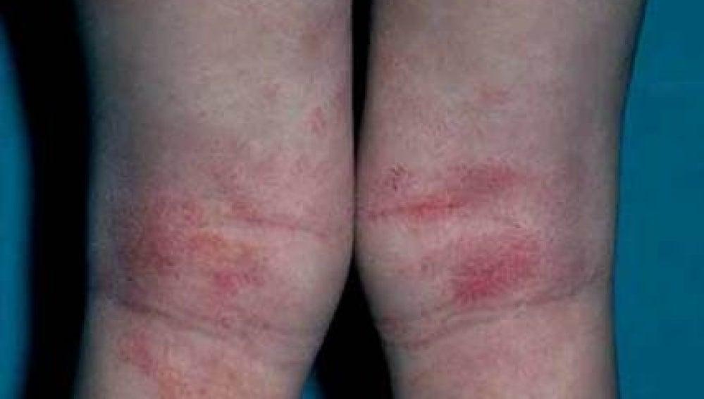 Espectacular aumento de la dermatitis atópica