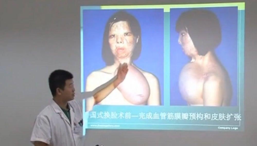 Una joven china recibe un trasplante de cara procedente de un injerto en su pecho