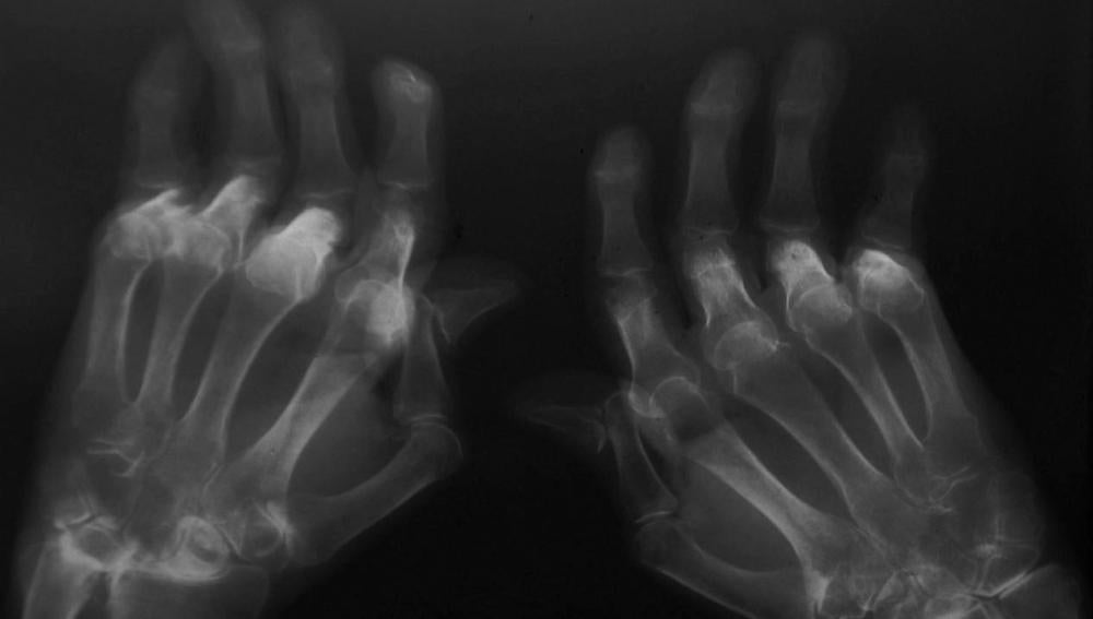 Paciente con artritis reumatoide
