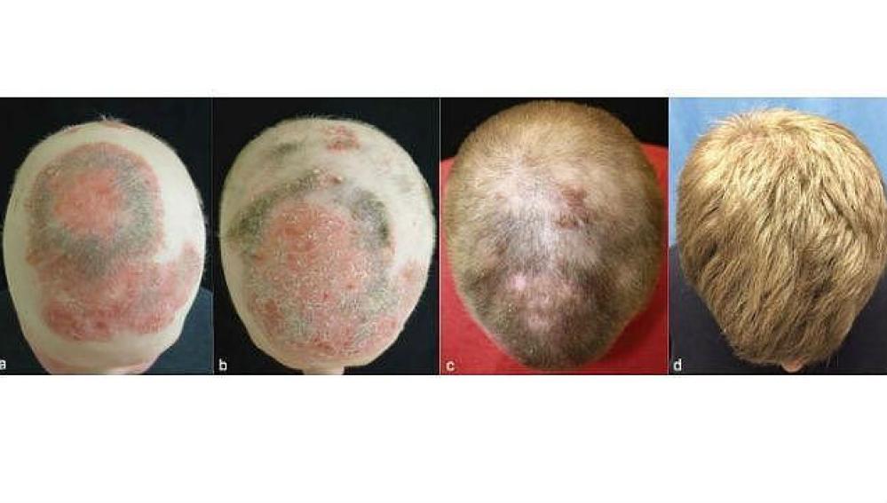 Proceso de crecimiento de pelo debido al tofacitinib