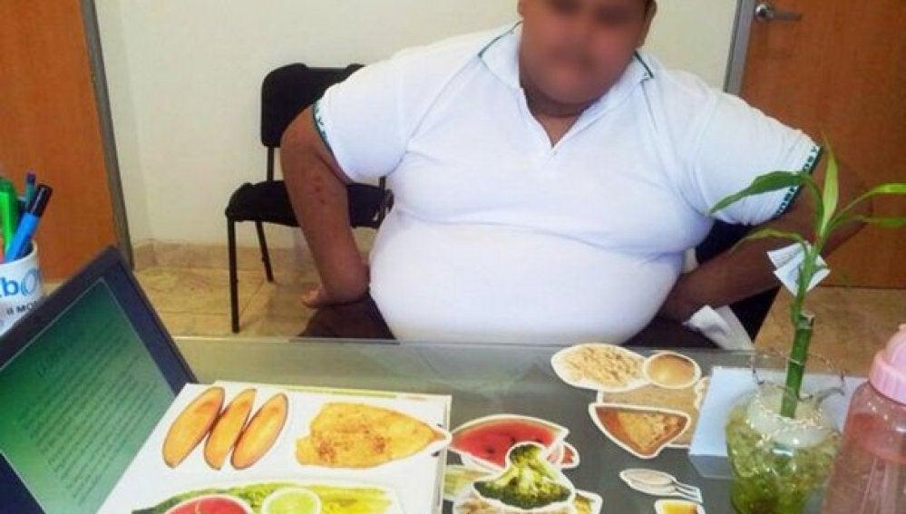Realizan en México bypass gástrico a un menor que pesaba 191 kilos