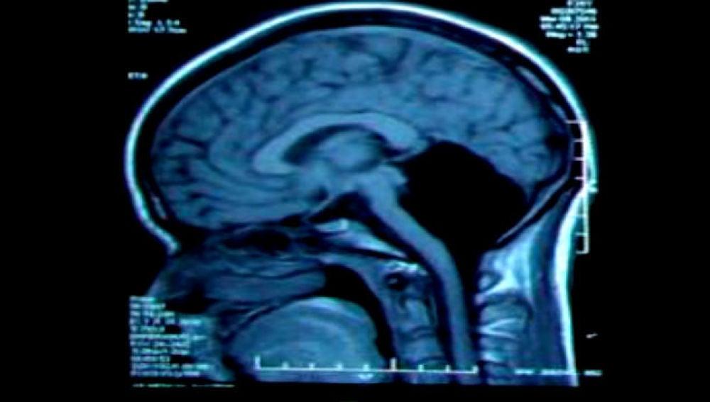 Radiografía de la paciente sin cerebelo.