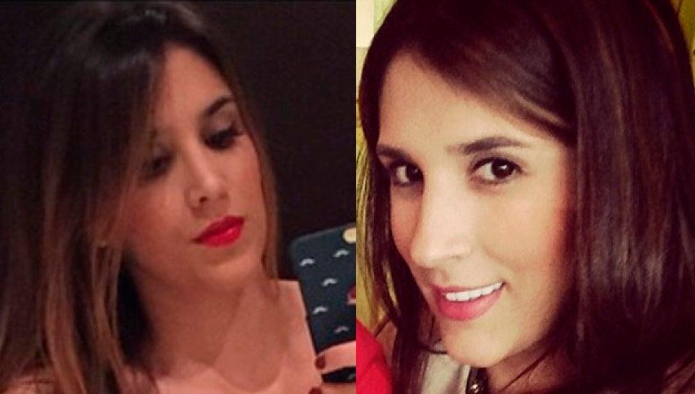 Daniela Ospina antes y después de su paso por el quirófano
