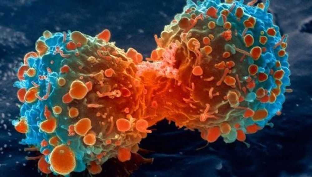 Célula tumoral (Crédito: Fabio Barteri)