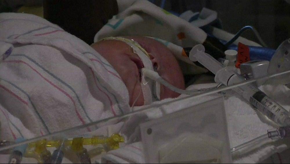 Bebé trasplantado de corazón