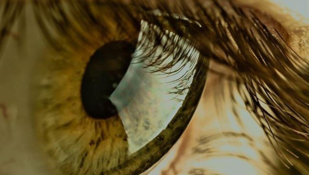 Imagen en detalle de un ojo